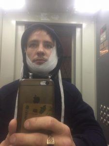 В Новосибирске водитель маршрутки изрезал лицо пассажира ножом