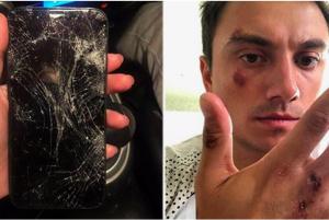 В Новосибирске таксист избил клиента и разбил его телефон