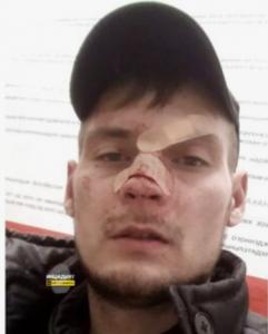 В Новосибирске охранник «Ашана» сломал нос мужчине