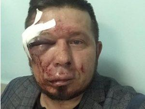 Активиста Андрея Радаева жестоко избили в Новосибирске