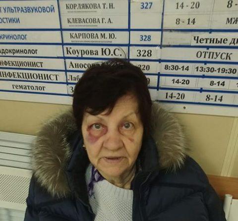 Анатолия Локтя попросил уйти в отставку сын упавшей пенсионерки