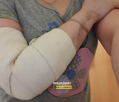 В Новосибирске электросамокатом сбили девушку