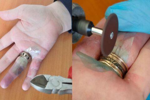 Помощь спасателей понадобилась сибирячке, чтобы снять с пальца кольцо