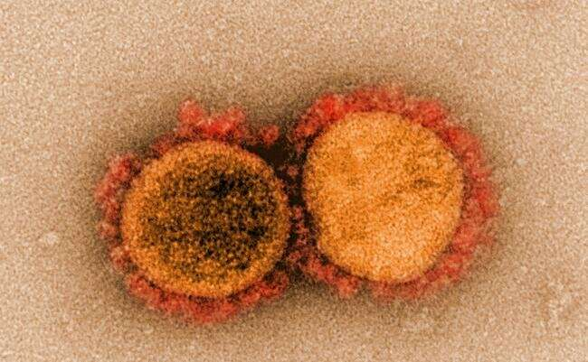 Обнаружен новый класс соединений, блокирующих размножение коронавируса