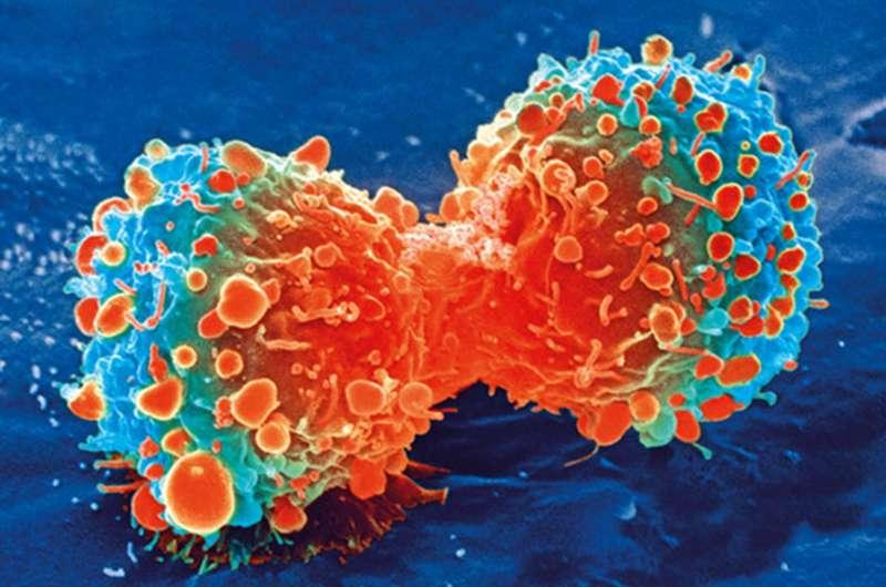 Исследователи определяют, как предотвратить метастазы рака