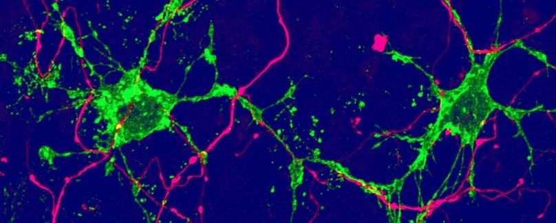 Два ранее неизвестных типа клеток мозга были обнаружены в исследовании на мышах