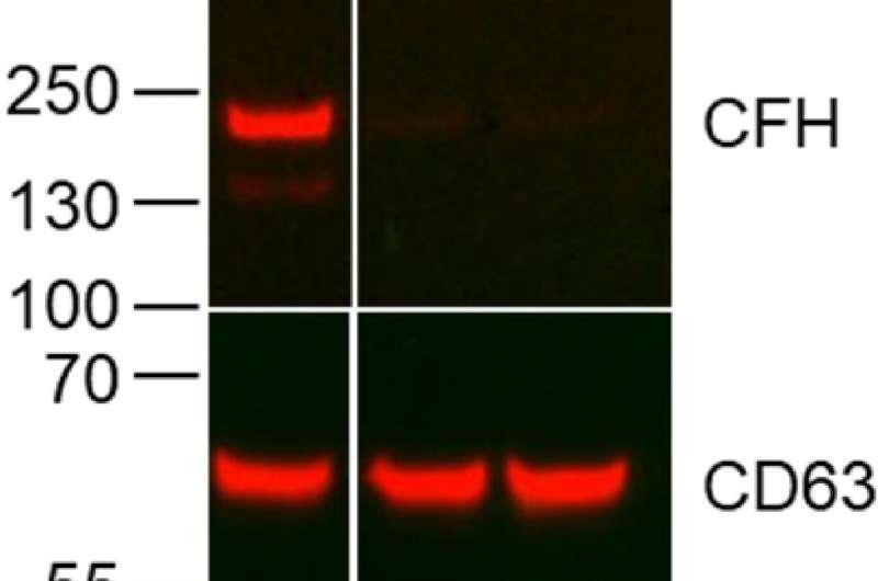 Антитела нацелены на механизм, который позволяет раку легких расти и распространяться