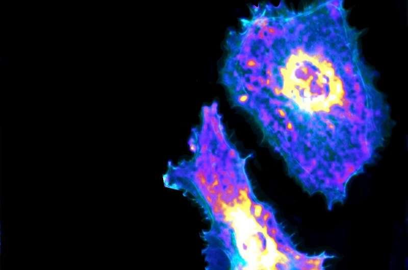 Впервые исследователи визуализируют метаболический процесс на одноклеточном уровне