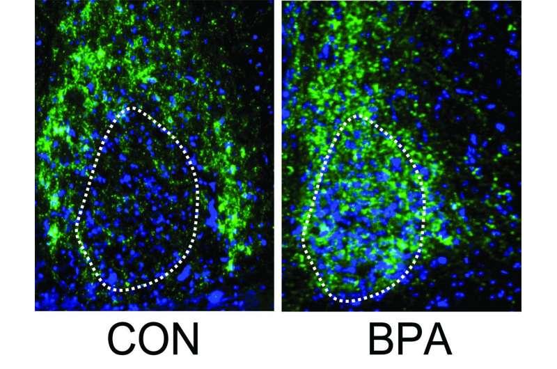 Исследование показывает, что воздействие BPA ниже нормативных уровней может повлиять на развитие мозга