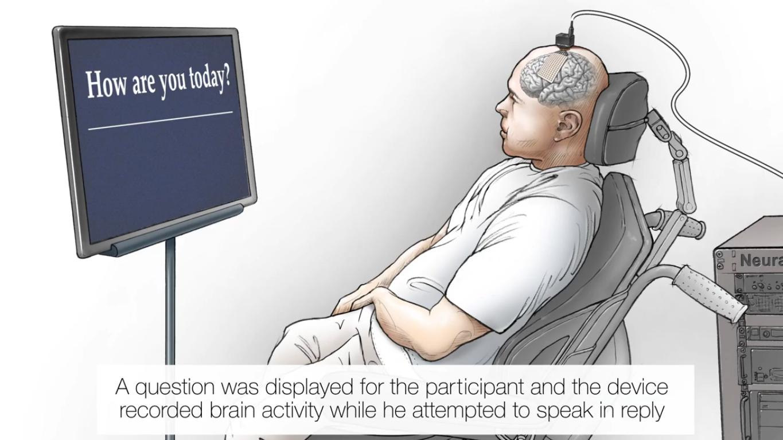 """""""Нейропротез"""" восстанавливает слова парализованному человеку"""