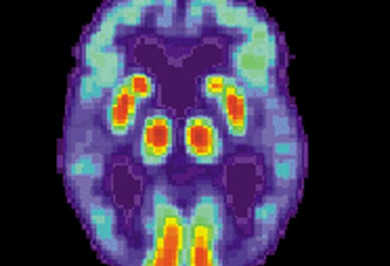 Определены новые цели лечения болезни Альцгеймера