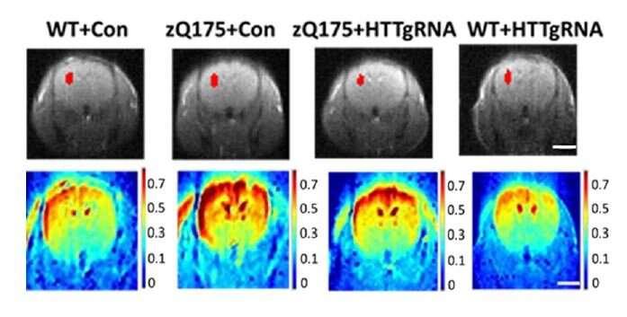 Генная терапия на ранних стадиях может замедлить болезнь Хантингтона