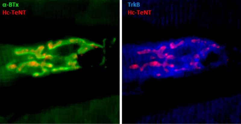 Фрагмент токсина столбняка может лечить депрессию, болезнь Паркинсона и БАС